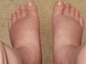 足 の むくみ 病気 高齢 者 高齢者の足のむくみに要注意!?原因は?予防と対策は?